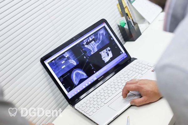 Современное оборудование и технологии для лечения зубов DGDent