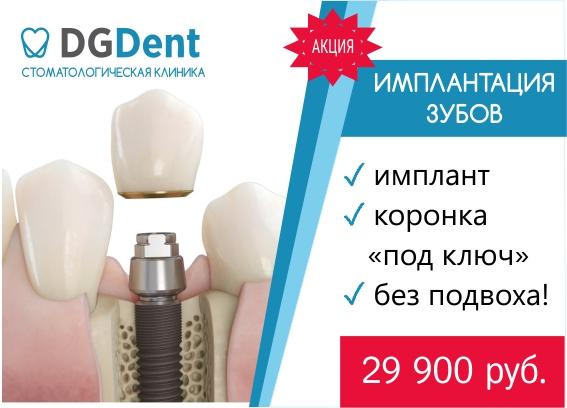 Имплантация зубов в СПб по акции